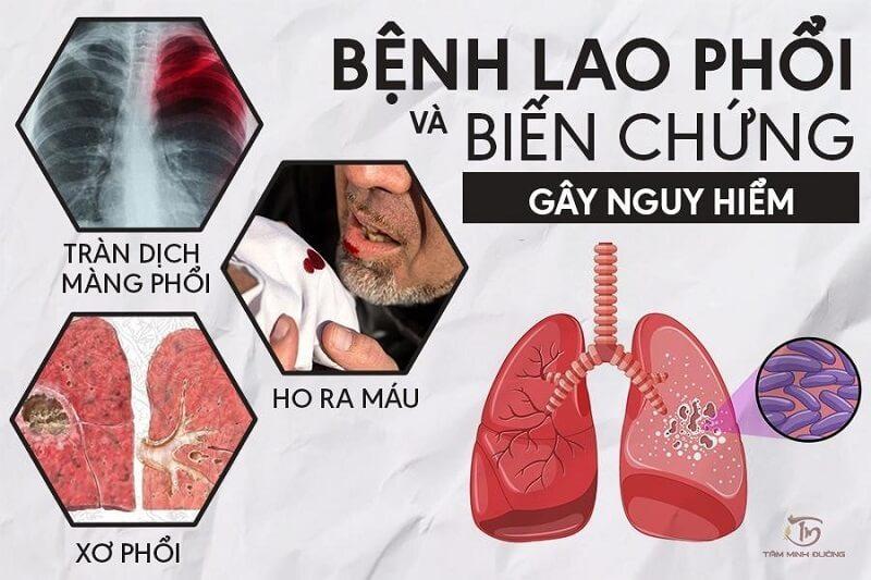 biến chứng của bệnh lao phổi